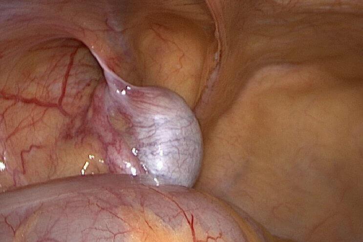 karn içinde testis görüntüsü